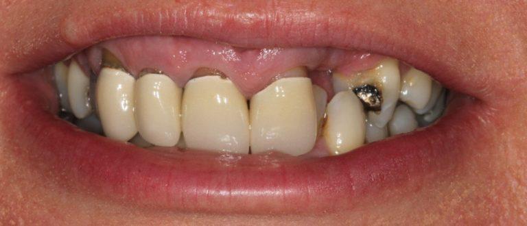 northfields dentist smile makeover