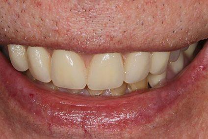 John after smile makeover at Dental Beauty Northfields in kent