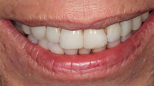 patricia smile makeover london dentist